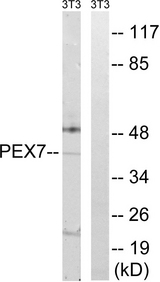 PEX7 Antibody - Western blot analysis of lysates from NIH/3T3 cells, using PEX7 Antibody. The lane on the right is blocked with the synthesized peptide.