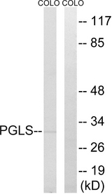 PGLS / 6PGL Antibody - Western blot analysis of lysates from COLO cells, using PGLS Antibody. The lane on the right is blocked with the synthesized peptide.
