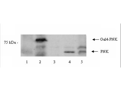 Anti-PNK Antibody - Western Blot. Western blot of Affinity Purified anti-PNK antibody shows detection of a 57 kD band corresponding to human PNK in a Y190 yeast cell lysate (lane 1), Y190 yeast cell lysate + human PNK (Gal DNA BP) (lane 2), EM9 XH Chinese hamster ovary cell lysate (lane 3), EM9 XH Chinese hamster ovary cell lysate + human PNK (lane 4) and a HeLa cell lysate (lane 5). Approximately 10 ug of lysate was run on SDS-PAGE and transferred onto nitrocellulose followed by reaction with a 1:1000 dilution of anti-PNK antibody incubated for 1 hr in TBST at room temperature. Signal was detected using standard techniques.