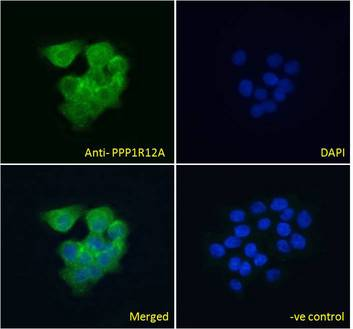 PPP1R12A / MYPT1 antibody immunofluorescence analysis of paraformaldehyde fixed A431 cells, permeabilized with 0.15% Triton. Primary incubation 1hr (10ug/ml) followed by Alexa Fluor 488 secondary antibody (4ug/ml), showing cytoplasmic staining. The nuclear stain is DAPI (blue). Negative control: Unimmunized goat IgG (10ug/ml) followed by Alexa Fluor 488 secondary antibody (2ug/ml).