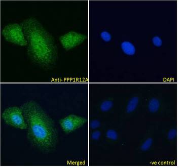 PPP1R12A / MYPT1 antibody immunofluorescence analysis of paraformaldehyde fixed U2OS cells, permeabilized with 0.15% Triton. Primary incubation 1hr (10ug/ml) followed by Alexa Fluor 488 secondary antibody (4ug/ml), showing cytoplasmic and some nuclear staining. The nuclear stain is DAPI (blue). Negative control: Unimmunized goat IgG (10ug/ml) followed by Alexa Fluor 488 secondary antibody (4ug/ml).