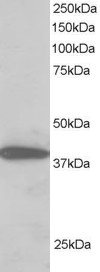 PPP1R8 / Rnase E Antibody - Antibody staining (2 ug/ml) of H460 lysate (RIPA buffer, 30 ug total protein per lane). Primary incubated for 1 hour. Detected by Western blot of chemiluminescence.