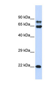 PPP2R1A antibody Western blot of 293T cell lysate. This image was taken for the unconjugated form of this product. Other forms have not been tested.