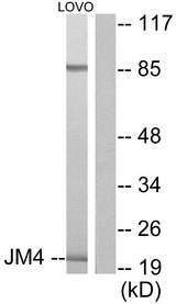 Western blot analysis of lysates from LOVO cells, using JM4 Antibody. The lane on the right is blocked with the synthesized peptide.