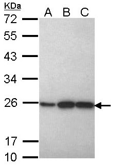 PRDX1 / Peroxiredoxin 1 Antibody - Sample (30 ug of whole cell lysate). A: H1299. B: Hela. C: Hep G2. 12% SDS PAGE. PRDX1 antibody diluted at 1:1000.