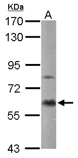 PRKCA / PKC-Alpha Antibody - Sample (50 ug of whole cell lysate). A: Mouse brain. 7.5% SDS PAGE. PKC Alpha antibody diluted at 1:1000.