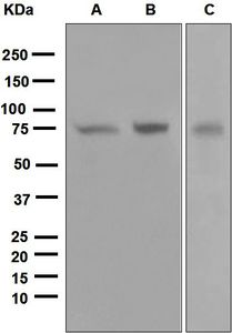 PRKCZ / PKC-Zeta Antibody - Western blot analysis on (A) 293T, (B) HT-29, and (C) fetal liver lysates using PKC zeta antibody.