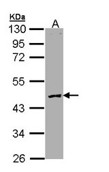 PROC / Protein C Antibody - Sample (30 ug of whole cell lysate). A: Molt-4 . 10% SDS PAGE. Protein C antibody diluted at 1:3000