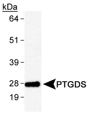 Detection of PTGDS in human brain lysates with primary antibody at 2.0 ug/ml.  This image was taken for the unconjugated form of this product. Other forms have not been tested.