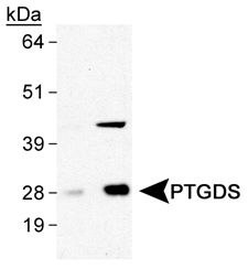 Prostaglandin D Synthase Antibody - Detection of PTGDS in human brain lysates using antibody at 0.5 and 2.0 ug/ml.  This image was taken for the unconjugated form of this product. Other forms have not been tested.