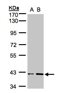 PRPSAP1 Antibody - Sample (30g whole cell lysate). A: HeLa S3, B: Hep G2 . 10% SDS PAGE. PRPSAP1 antibody diluted at 1:1000