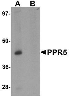 PRR5 Antibody - Western blot analysis of PRR5 in SK-N-SH cell lysate with PRR5 antibody at 1 ug/ml in (A) the absence and (B) the presence of blocking peptide