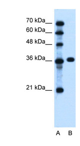 PTCH1 / Patched 1 Antibody - PTCH1 antibody Western blot of Jurkat lysate. This image was taken for the unconjugated form of this product. Other forms have not been tested.