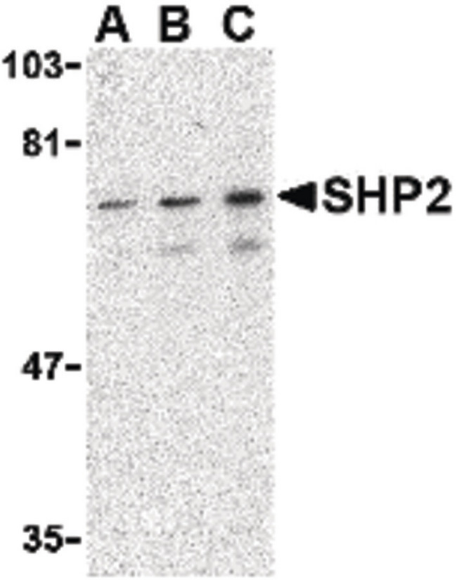 PTPN11 / SHP-2 / NS1 Antibody - Western blot of SHP2 in mouse skeletal muscle tissue lysate with SHP2 antibody at (A) 0.5, (B) 1 and (C) 2 ug/ml.
