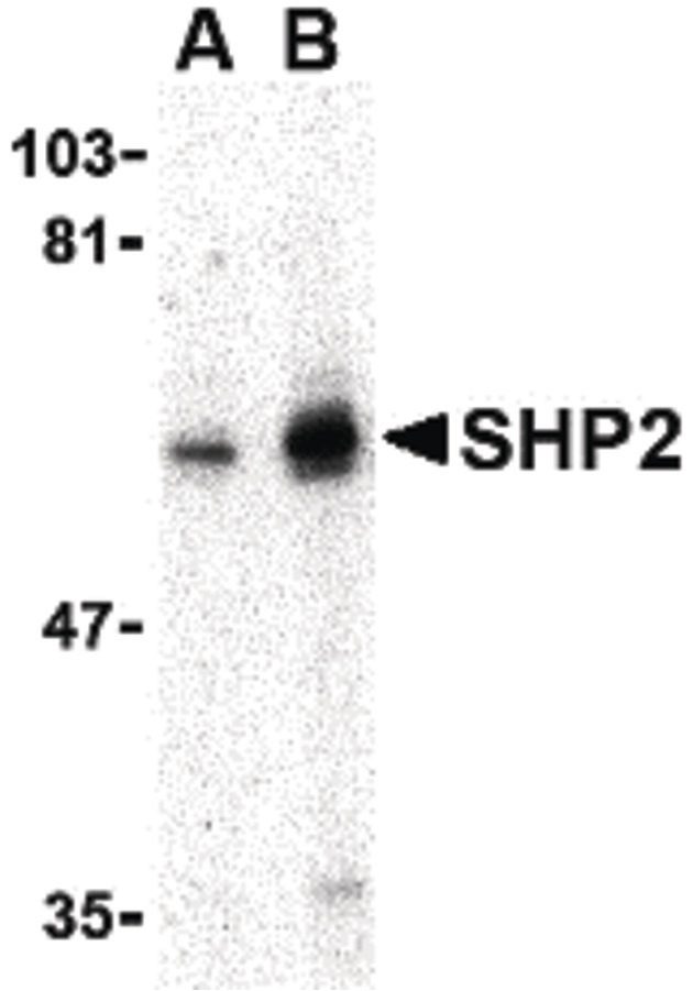 PTPN11 / SHP-2 / NS1 Antibody - Western blot of SHP2 in mouse skeletal muscle tissue lysate with SHP2 antibody at (A) 0.5 and (B) 1 ug/ml.