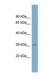 RAB23 antibody Western blot of Fetal Muscle lysate. This image was taken for the unconjugated form of this product. Other forms have not been tested.