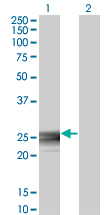 Western blot of RAB3B expression in transfected 293T cell line by RAB3B monoclonal antibody (M01), clone 3F12.