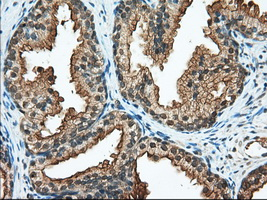 IHC of paraffin-embedded Human prostate tissue using anti-RANGAP1 mouse monoclonal antibody. (Dilution 1:50).