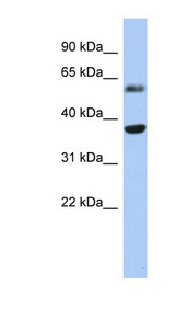 RDH10 Antibody - RDH10 antibody Western blot of Fetal Heart lysate.  This image was taken for the unconjugated form of this product. Other forms have not been tested.