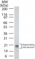 REG1 / Regenerating Islet-Derived 1 Antibody - Western blot of Regenerating islet-derived 1 in human pancreas lysate using REG1 / Regenerating Islet-Derived 1 Antibody at 0.5 ug/ml. Multiple isoforms of the protein can be seen. Goat anti-rabbit Ig HRP secondary antibody, and PicoTect ECL substrate solution, were used for this test.