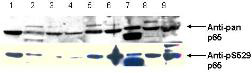 RELA / NFKB p65 Antibody - Anti-pS529 shows phospho p65 staining in carcinoma cells.