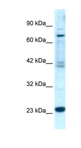 RGS10 Antibody - RGS10 antibody Western blot of Jurkat lysate. This image was taken for the unconjugated form of this product. Other forms have not been tested.