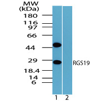RGS19 Antibody - Western blot of RGS19 in mouse placenta lysate in the 1) absence and 2) presence of immunizing peptide using RGS19 Antibody  at 1.0 ug/ml.