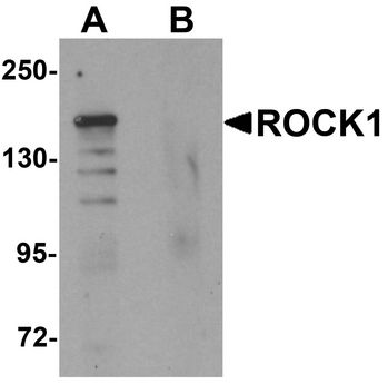 Rho Kinase / ROCK1 Antibody - Western blot analysis of ROCK1 in 293 cell lysate with ROCK1 antibody at 1 ug/ml in (A) the absence and (B) the presence of blocking peptide.