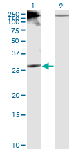 Western blot of RICTOR expression in transfected 293T cell line by RICTOR monoclonal antibody (M01), clone 1F3.