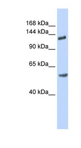 ROBO2 Antibody - ROBO2 antibody Western blot of Fetal Brain lysate. This image was taken for the unconjugated form of this product. Other forms have not been tested.