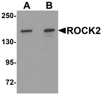 ROCK2 Antibody - Western blot analysis of ROCK2 in mouse brain tissue lysate with ROCK2 antibody at (A) 1 and (B) 2 ug/ml