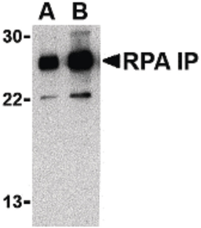 RPAIN Antibody - Western blot of RPA Interacting Protein in Jurkat cell lysate with RPA Interacting Protein antibody at (A) 0.5 and (B) 1 ug/ml.