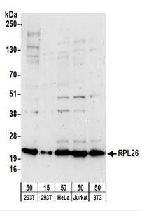 Detection of Human and Mouse RPL26 by Western Blot. Samples: Whole cell lysate from 293T (15 and 50 ug), HeLa (50 ug), Jurkat (50 ug), and mouse NIH3T3 (50 ug) cells. Antibodies: Affinity purified goat anti-RPL26 antibody used for WB at 0.4 ug/ml. Detection: Chemiluminescence with an exposure time of 3 minutes.