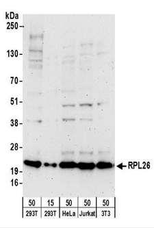 RPL26 / Ribosomal Protein L26 Antibody - Detection of Human and Mouse RPL26 by Western Blot. Samples: Whole cell lysate from 293T (15 and 50 ug), HeLa (50 ug), Jurkat (50 ug), and mouse NIH3T3 (50 ug) cells. Antibodies: Affinity purified goat anti-RPL26 antibody used for WB at 0.4 ug/ml. Detection: Chemiluminescence with an exposure time of 3 minutes.