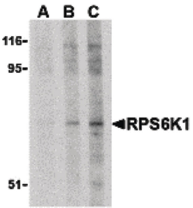 RPS6KA1 / RSK1 Antibody - Western blot of RPS6K1 in Jurkat cell lysate with RPS6K1 antibody at (A) 2.5, (B) 5 and (C) 10 ug/ml.