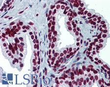 RPS6KA2 / RSK3 Antibody - Anti-RPS6KA2 / RSK3 antibody IHC of human prostate. Immunohistochemistry of formalin-fixed, paraffin-embedded tissue after heat-induced antigen retrieval. Antibody concentration 5 ug/ml.