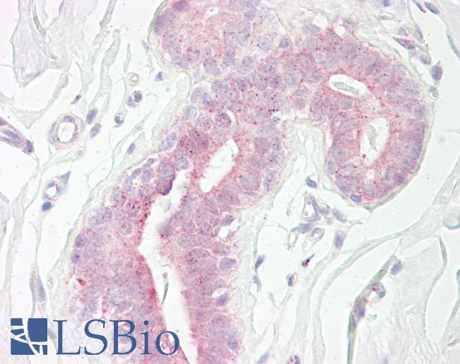 Anti-RPS6KB1 / S6K antibody IHC of human breast. Immunohistochemistry of formalin-fixed, paraffin-embedded tissue after heat-induced antigen retrieval. Antibody dilution 1:100.
