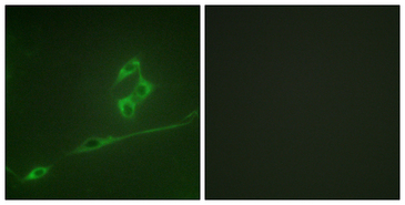 Immunofluorescence analysis of NIH/3T3 cells, using p70 S6 Kinase Antibody. The picture on the right is blocked with the synthesized peptide.