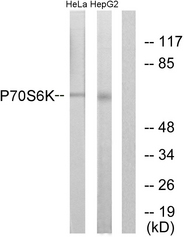 Western blot analysis of lysates from HeLa/HepG2, using p70 S6 Kinase Antibody. The lane on the right is blocked with the synthesized peptide.