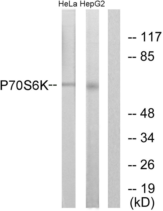 RPS6KB1 / P70S6K / S6K Antibody - Western blot analysis of lysates from HeLa/HepG2, using p70 S6 Kinase Antibody. The lane on the right is blocked with the synthesized peptide.