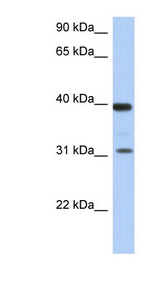 RPSA / Laminin Receptor Antibody - RPSA / Laminin Receptor antibody Western blot of Fetal Thymus lysate. This image was taken for the unconjugated form of this product. Other forms have not been tested.