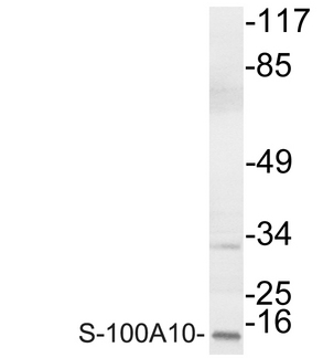 S100A10 Antibody - Western blot analysis of lysate from COLO cells, using S-100A10 antibody.