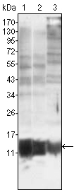 Western blot using S100A10/P11 mouse monoclonal antibody against MCF-7 (1), HepG2 (2) and HeLa (3).