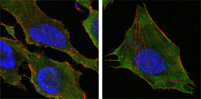 Confocal immunofluorescence of HeLa (left) and L-02 (right) cells using S100A10/P11 mouse monoclonal antibody(green). Red: Actin filaments have been labeled with DY-554 phalloidin. Blue: DRAQ5 fluorescent DNA dye.