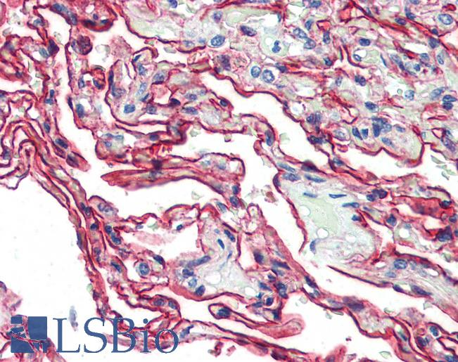Anti-S100A10 antibody IHC of human lung. Immunohistochemistry of formalin-fixed, paraffin-embedded tissue after heat-induced antigen retrieval. Antibody dilution 1:200.
