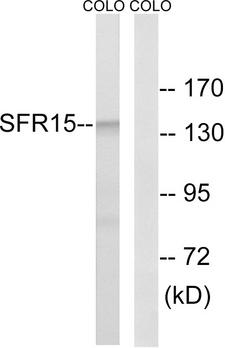 SCAF4 Antibody - Western blot analysis of lysates from COLO cells, using SFRS15 Antibody. The lane on the right is blocked with the synthesized peptide.
