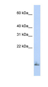 SCGB1A1 / Uteroglobin Antibody - SCGB1A1 / Uteroglobin antibody Western blot of Fetal Brain lysate. This image was taken for the unconjugated form of this product. Other forms have not been tested.