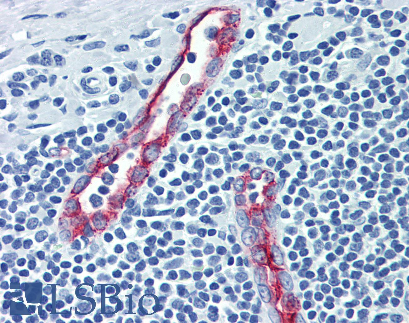 SELP / P-Selectin / CD62P Antibody - Anti-CD62P antibody IHC of human tonsil. Immunohistochemistry of formalin-fixed, paraffin-embedded tissue after heat-induced antigen retrieval. Antibody concentration 10 ug/ml.