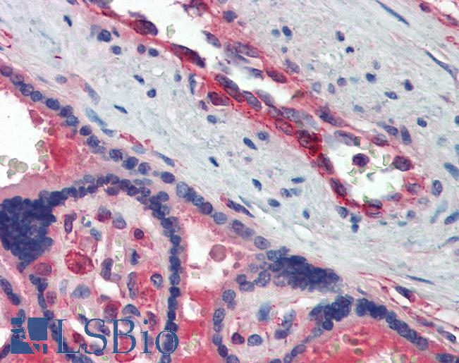 SELP / P-Selectin / CD62P Antibody - Anti-CD62P antibody IHC of human placenta. Immunohistochemistry of formalin-fixed, paraffin-embedded tissue after heat-induced antigen retrieval. Antibody concentration 2.5 ug/ml.