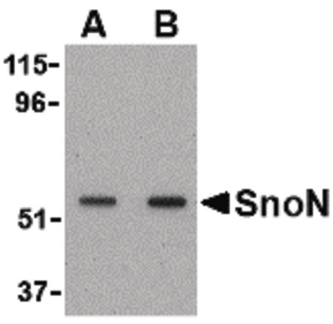 SKIL / SNO / SnoN Antibody - Western blot of SnoN in A431 cell lysate with SnoN antibody at (A) 0.5 and (B) 1 ug/ml.